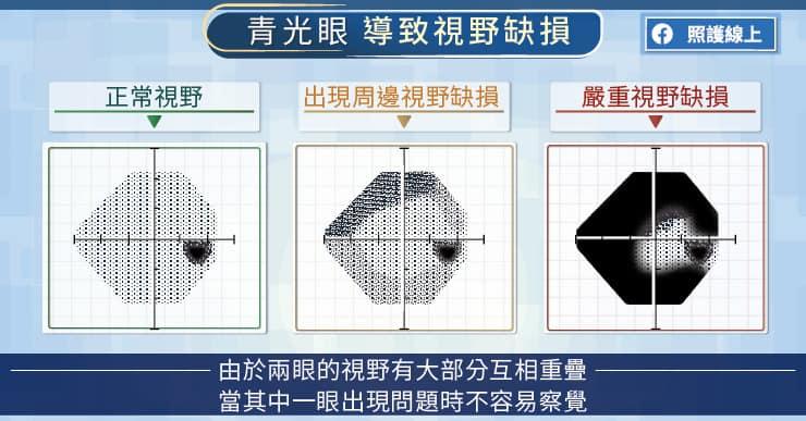 青光眼導致視野缺損