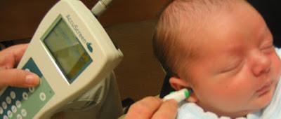 revisión de oído en recién nacido