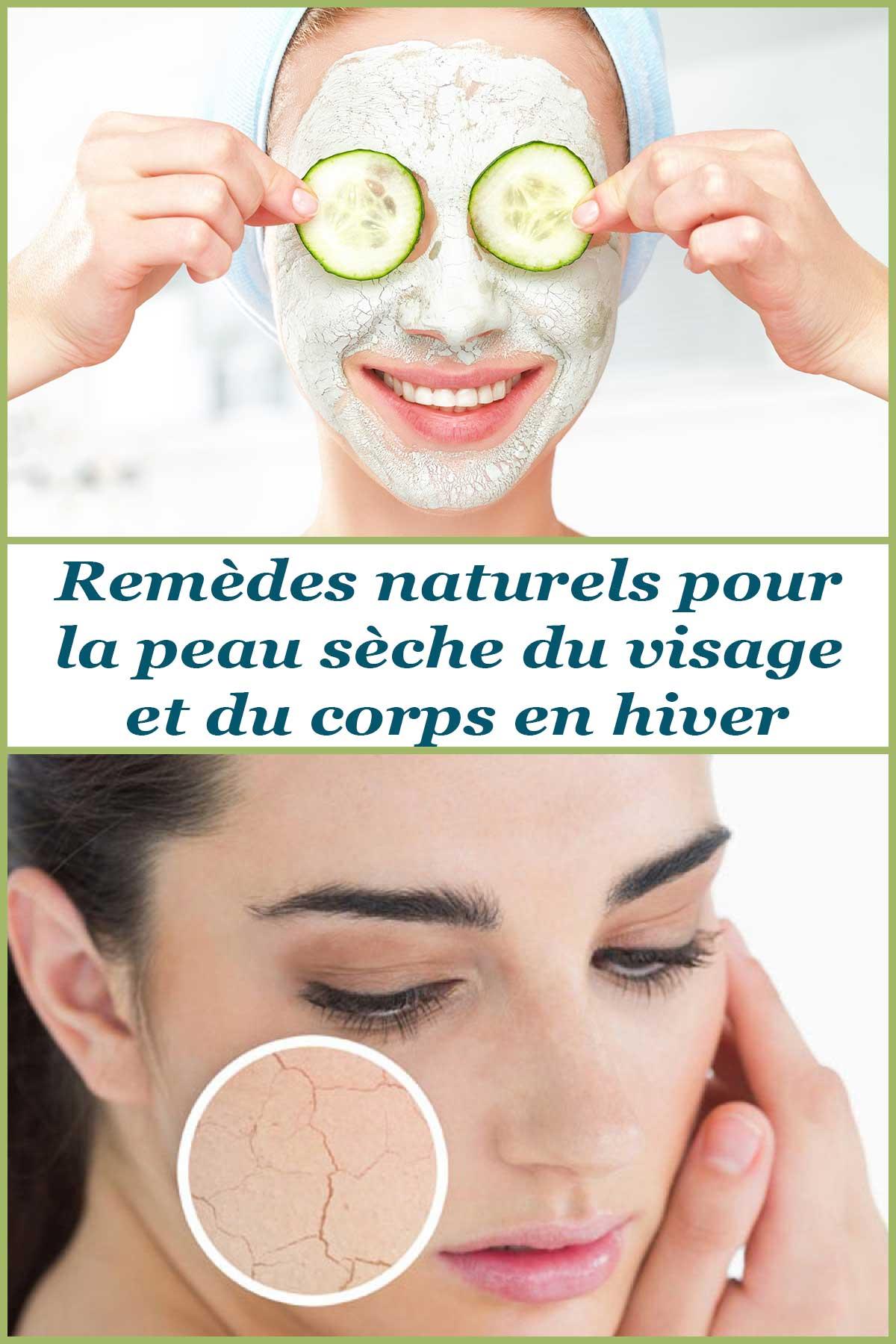 Remèdes naturels pour la peau sèche du visage et du corps en hiver
