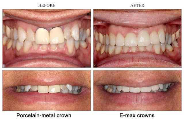 e.max,e.max crown,crowns,e-max crowns,crown,emax crown,emax crowns,emax crowns turkey,emax crowns abroad,emax crowns dentist,e-max,ips e.max,cost of emax crown,anterior crowns,zirconia crowns,esthetic crowns,porcelin crowns,aesthetic crowns,crows,cutting metal crowns,translucent crown,dental crown,ceramic crown,crown removal,anterior crown,zirconia crown,metal free crown,all-ceramic crown,translucent crown molding,ips e.max cad,esthetic dental crown,cost of zirconia crown