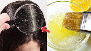 علاج قشرة الشعر الدهني
