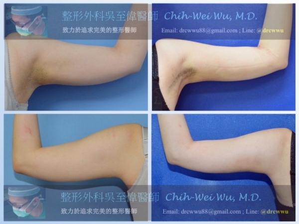 抽脂用於自體隆乳,左為術前,右為術後(台北凡登自體隆乳吳至偉醫師)