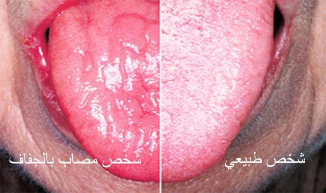اسباب جفاف الفم والشفايف