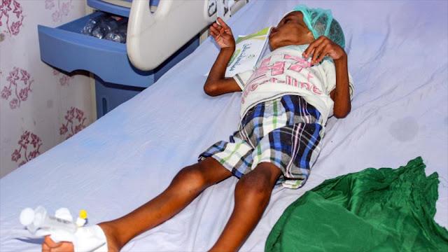 """Unicef: Yemen es """"un infierno de niños"""" tras agresiones saudíes"""