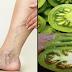 VARICOSE VEINS: How To Treat Varicose Veins Using Green Tomatoes