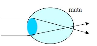 Pada lukisan jalannya sinar sejajar yang jatuh pada lensa mata, ternyata sinar biasnya jatuh seperti tampak pada gambar. Jenis cacat mata yang dialami mata tersebut dan jenis lensa untuk menolong cacat mata tersebut adalah