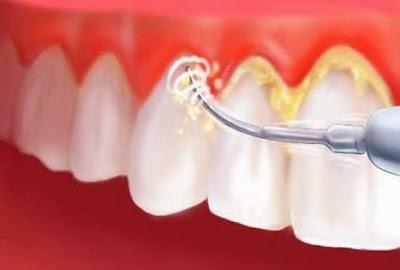 3 Cara Membersihkan Karang Gigi Secara Alami di Rumah Sendiri