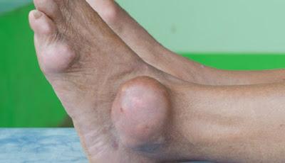 ilustrasi asam urat di kaki