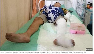 BREAKING NEWS !! Petasan Untuk Malam Takbir Meledak, Tiga Pria di Blitar Mengalami Luka Bakar