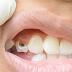 Cara Mencegah Gigi Berlubang Secara Alami dari SehatQ.com