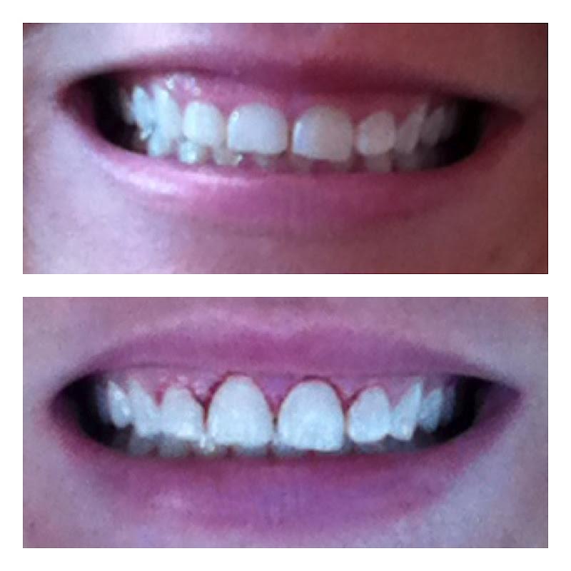 My Igloo Life: Marissa Big Teeth.