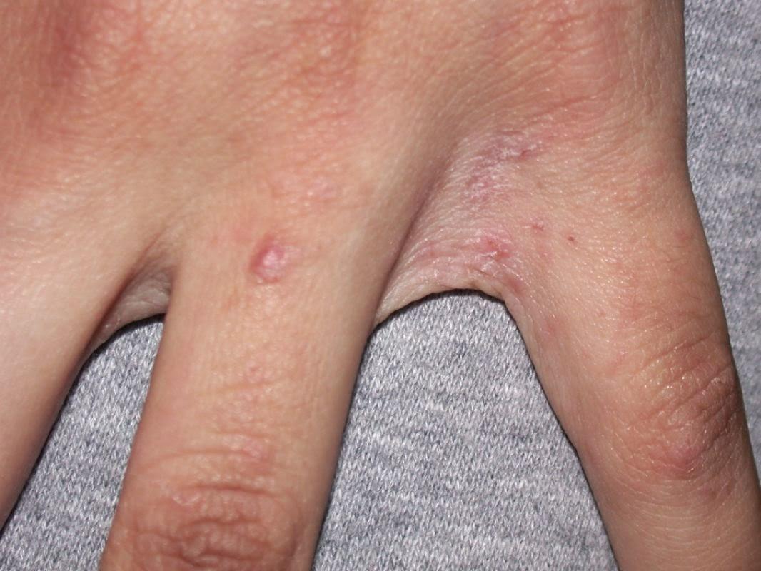 Scabia (raia): contagiozitate, tratament si igiena | Bioclinica