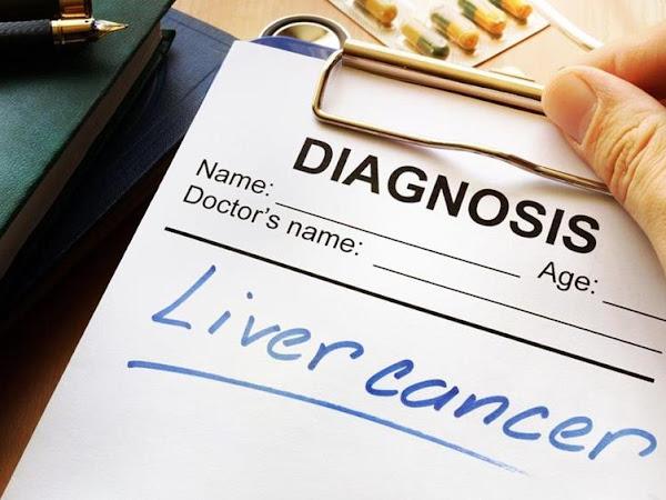 Imunoterapi, Harapan Baru Bagi Penderita Kanker Hati
