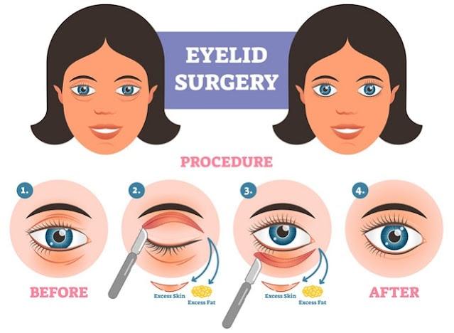 youthful eyes eyelid surgery smooth wrinkles eliminate dark circles