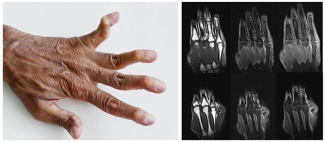 Jaccoud's arthritis