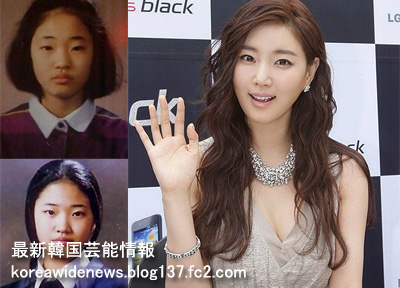 Before and after photos of Korean plastic surgery. South Korea is a country with the ...