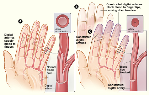 http://www.autoimmunediseasefight.com/2017/09/raynauds-disease-syndrome.html