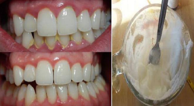 Cara Ajaib Memutihkan Gigi Kuning Dan Merontokan Karang Gigi Dalam 3