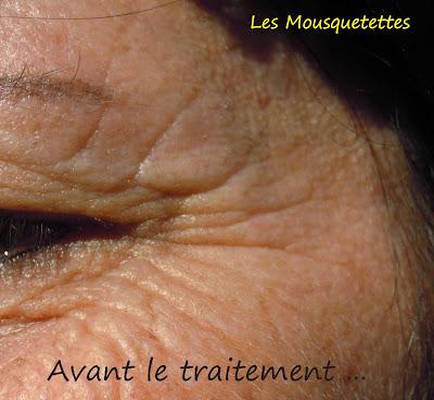 Avant traitement des patchs Feelgold - Callas la Divine - Les Mousquetettes©
