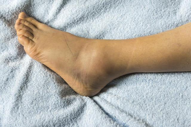 Conseils efficaces à appliquer pour soigner les jambes enflées