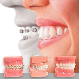 Trường hợp niềng răng cho người lớn tuổi hiệu quả