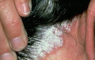 Tratamientos Para La Psoriasis Del Cuero Cabelludo