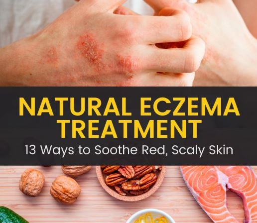 Eczema: About, Causes, Treatments, and Home Remedies