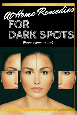 At Home Remedies For Dark Spots By Barbies Beauty Bits