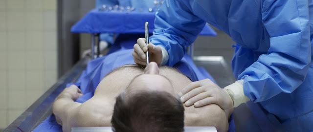 Autopsia y Derecho Procesal Penal