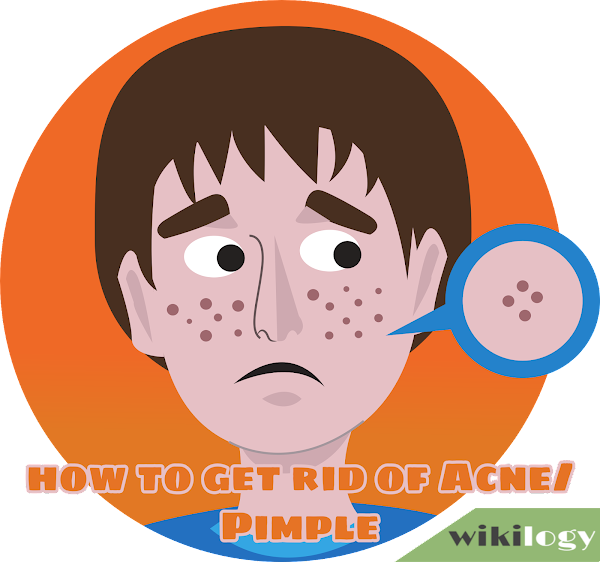How to Get Rid of Acne Pimple