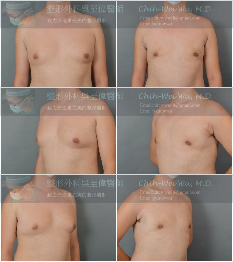 2020年10月最新男性女乳手術案例