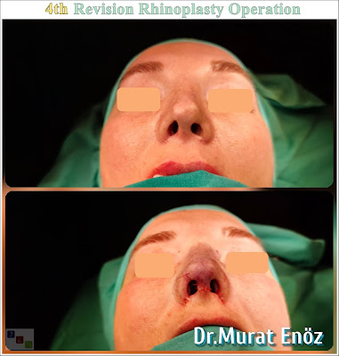 4. Revision Nose Job Operation in Istanbul