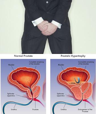 Cara Sembuhkan Pembengkakan Prostat Dengan Obat Tradisonal Aman Di Konsumsi Tanpa Efek Samping