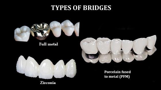 type of bridge material