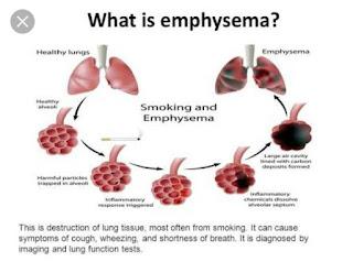 Process of Emphysema