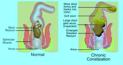health is wealth: constipation, a digestive problem fecal impaction diagram