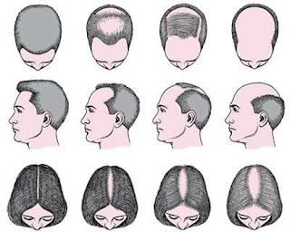 Pola kerontokan rambut pada pria dan wanita