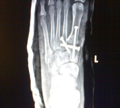 Fracture In Foot   Ketogenic Diet. How To Plan