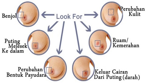 5 Penyebab Tumor Payudara yang Harus Kamu Ketahui