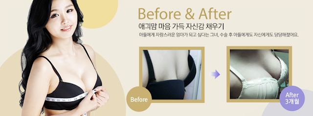breast plastic surgery specialized hospital