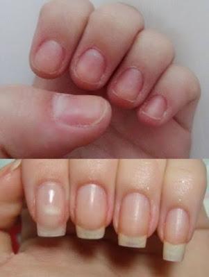 Uma unha saudável é dura, flexível e elástica, capaz de resistir aos impactos mecânicos do dia a dia. As unhas das mãos crescem cerca de 3 mm por mês.