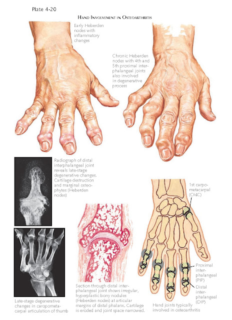 GOUT AND GOUTY ARTHRITIS