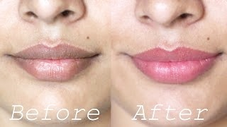 How to Lighten Dark Lips Naturally – Rapid Home Remedies
