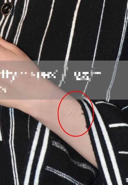 Fan đau lòng khi thấy những vết sẹo như dao cứa trên tay Dương Mịch