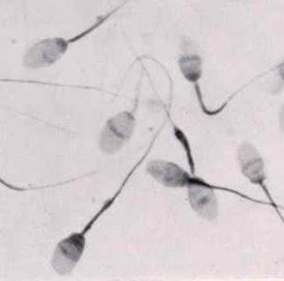 sperm hucreleri