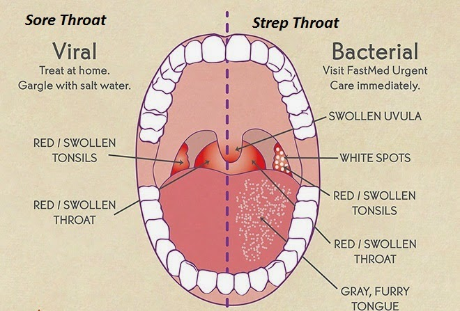 What Is The Difference Between Strep Throat And Tonsillitis 88