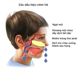 Viêm VA ở trẻ và dự báo những biến chứng
