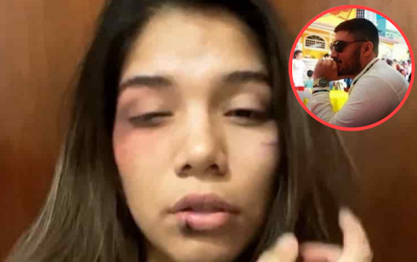 Estudiante de la UVM denuncia en redes maltrato por parte de su novio y las redes la tunden.