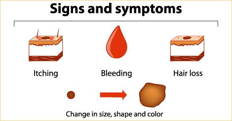 Cancer, Cancer signs and symptoms, Health