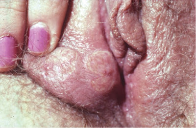 Large labial ulcers in a woman with initial genital herpes, mimicking chancroid.